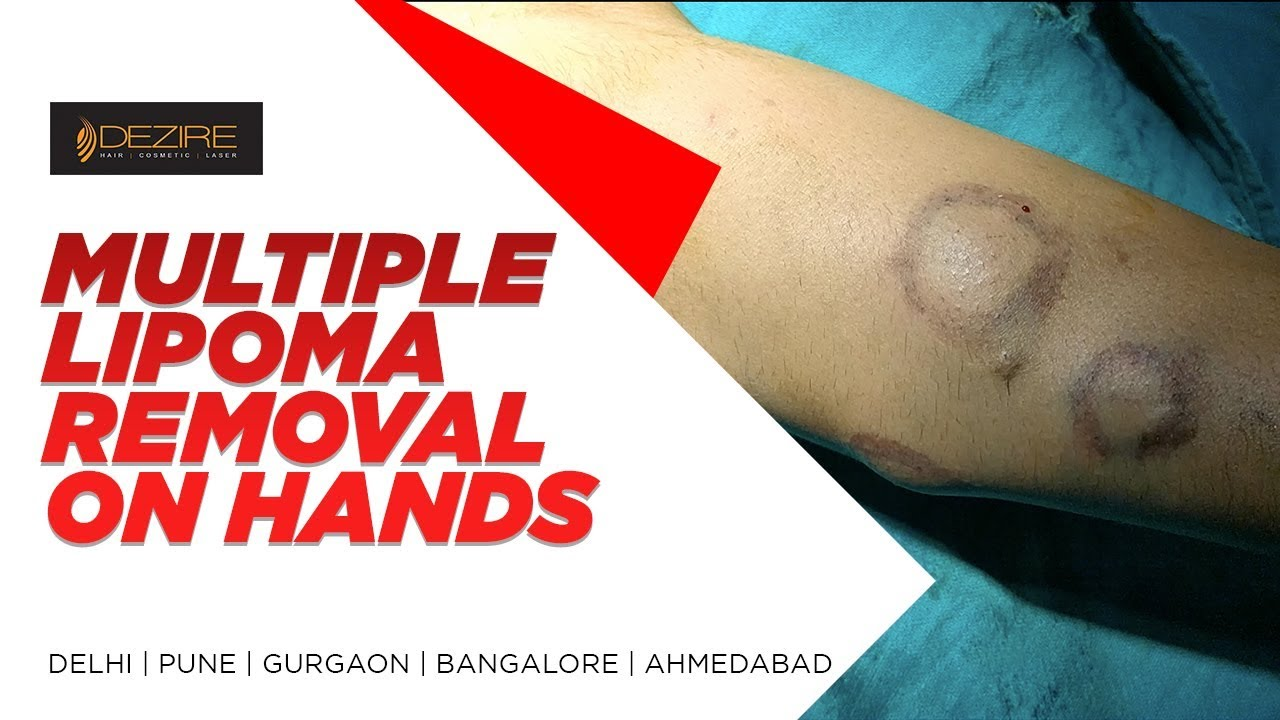 Best Multiple Lipoma Removal From Patient Hands By Dr  Prashant