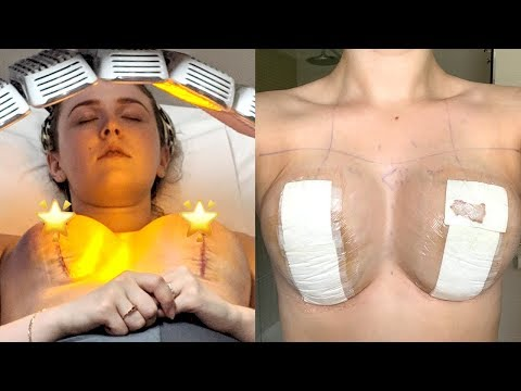 Breast Lift Recovery Week 1 Mastopexy Surgery Youtube