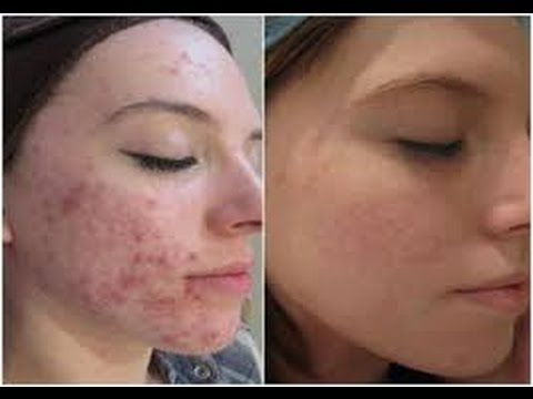 How To Get Rid Of Acne Redness Quickly