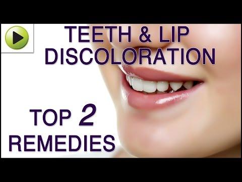 Teeth & Lip Discoloration - Natural Ayurvedic Home Remedies