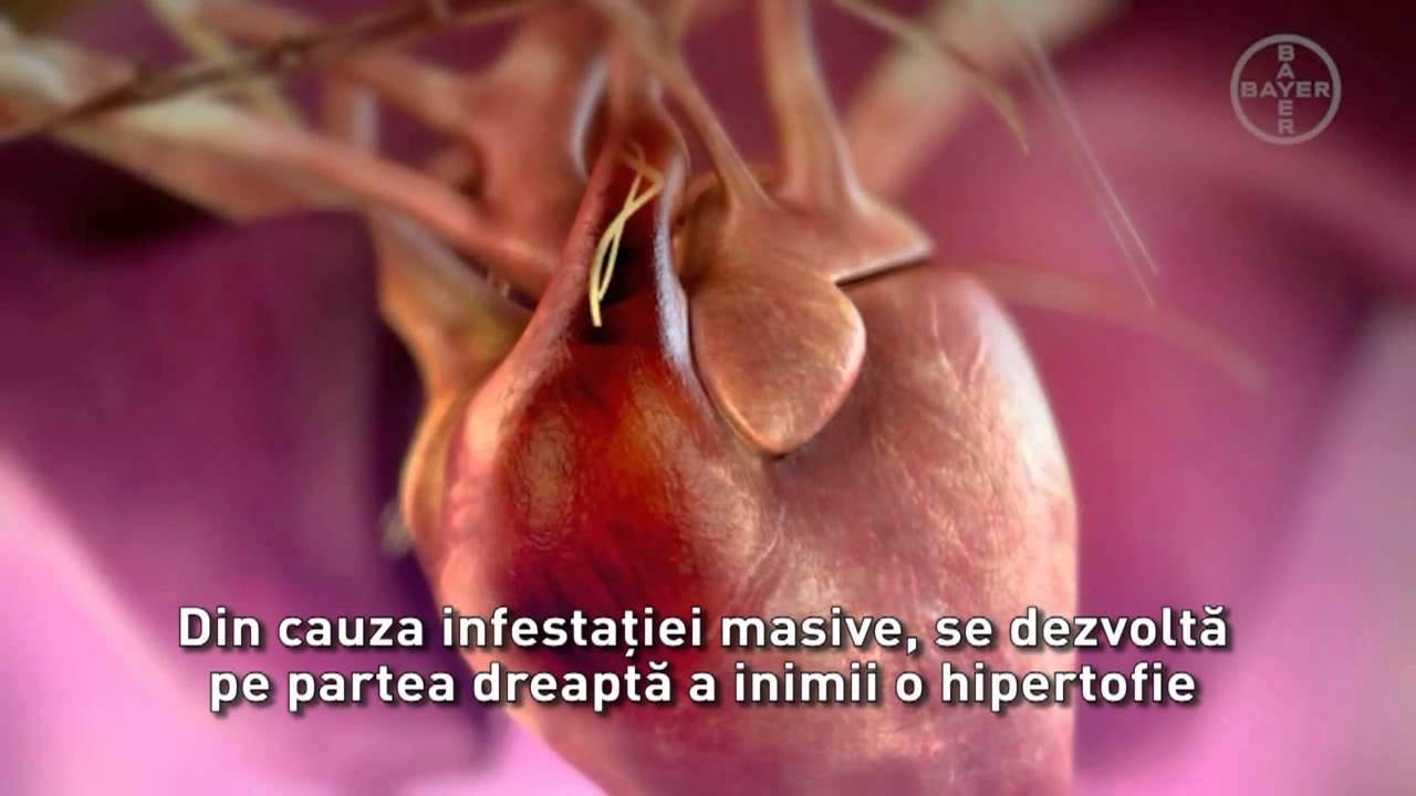 Viermi la inima la om - Viermi în inimă