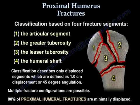 Proximal Humerus Fractures classification - Everything You Need To Know - Dr. Nabil Ebraheim
