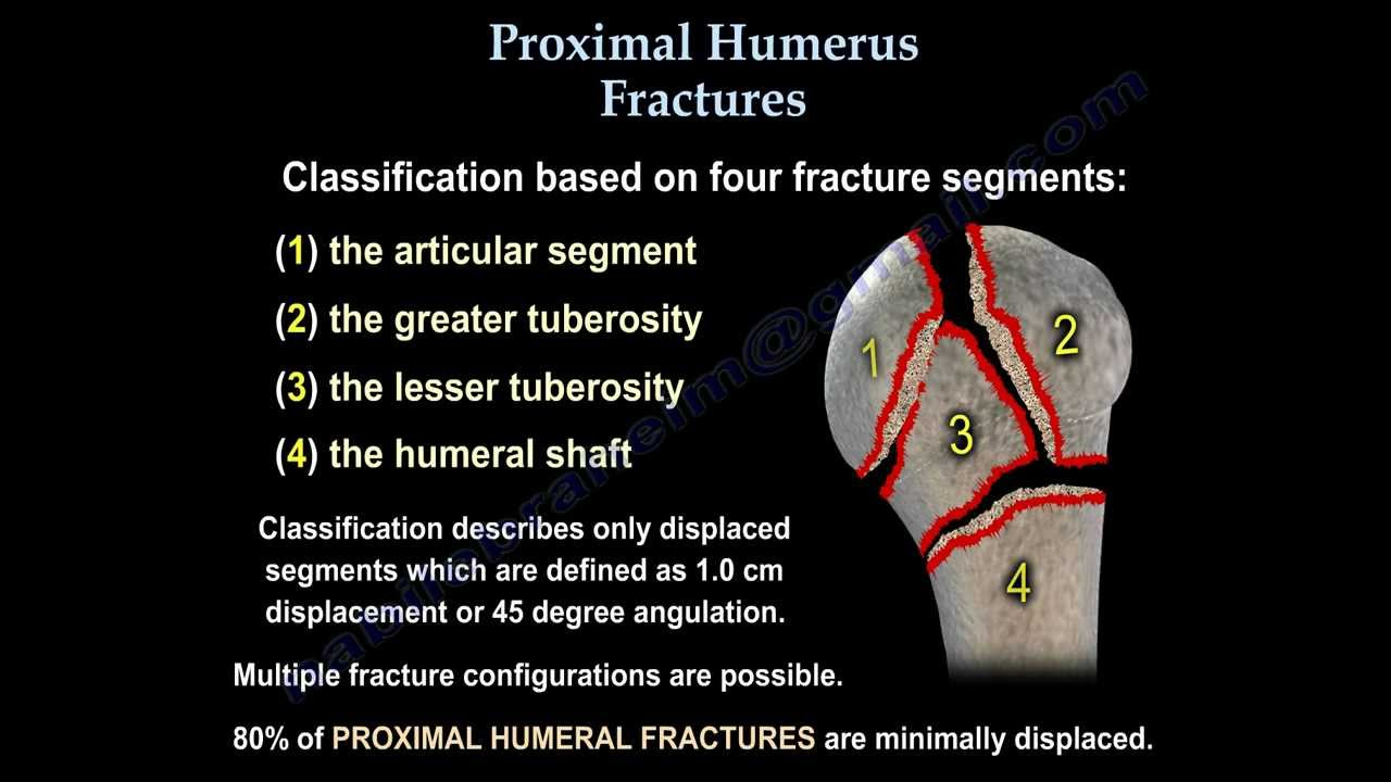 Proximal Humerus Fractures Classification Everything You Need To