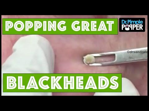 Plenty of Great Blackheads!