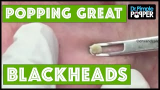 Plenty of Great Blackheads! thumbnail