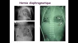 Download Urgences chirurgicales du Nouveau née - Comité pédagogique de pédiatrie : Docteur Aboura
