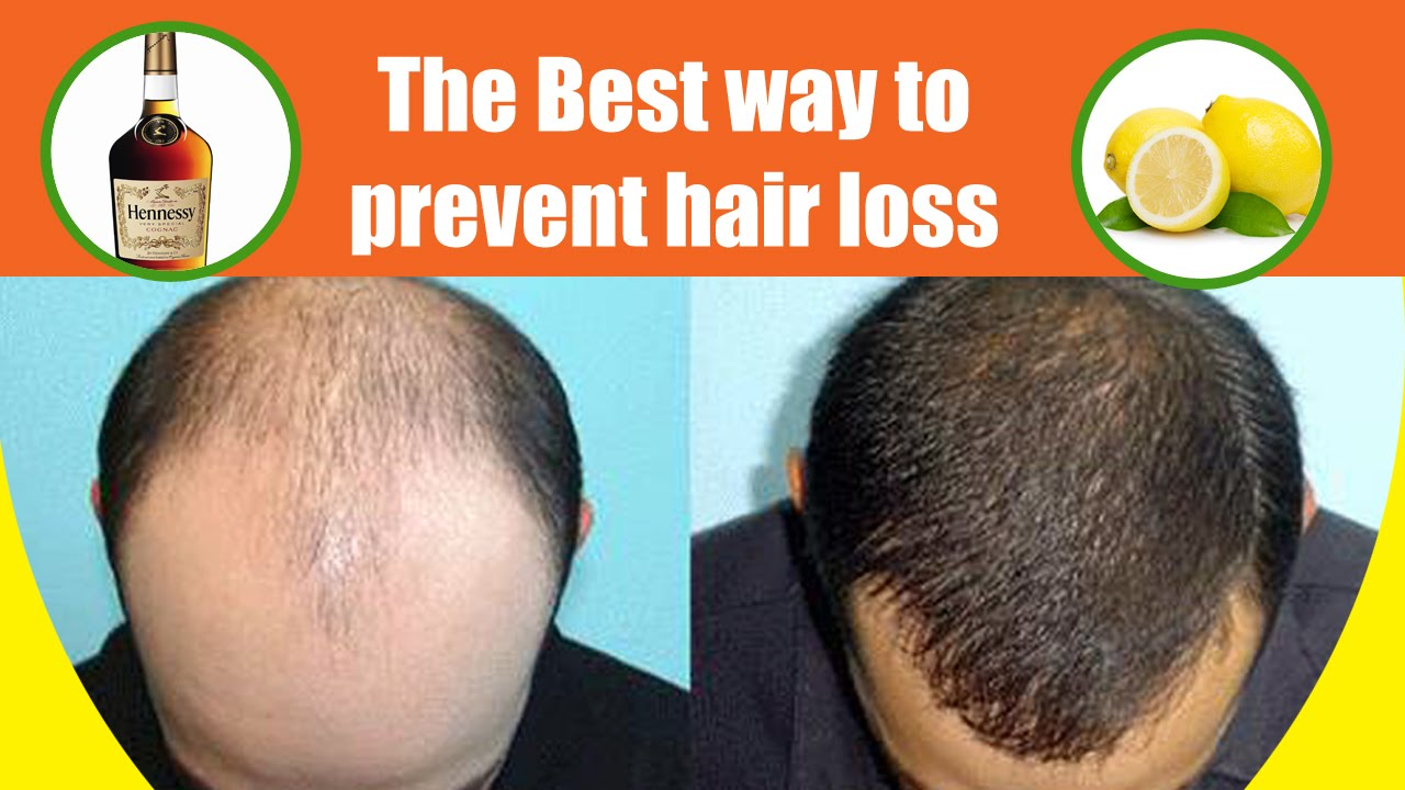 The Best Mask to Prevent Hair Loss