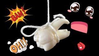 Как вырвать зуб))