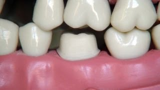 Full metal crown preparation - for dental students