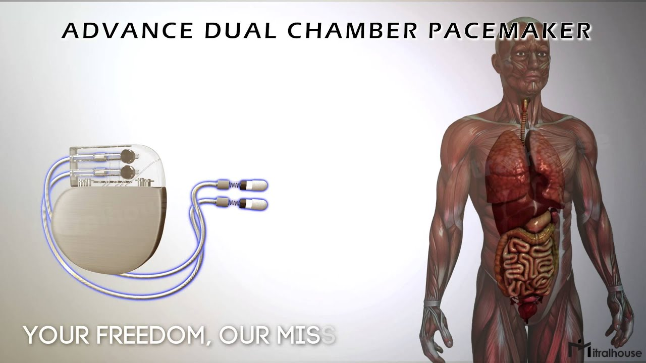 Single chamber pacemaker medtronic