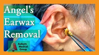 Angel's Earwax Removal | Auburn Medical Group