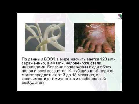 Лечение варикоза и филярий в домашних условиях с Биомедис М. Как вылечить тромбофлебит дома.