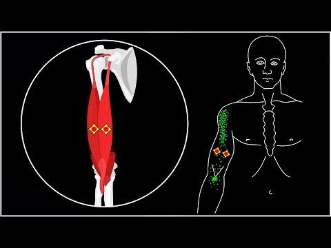 Почему болят мышцы от плеча до локтя