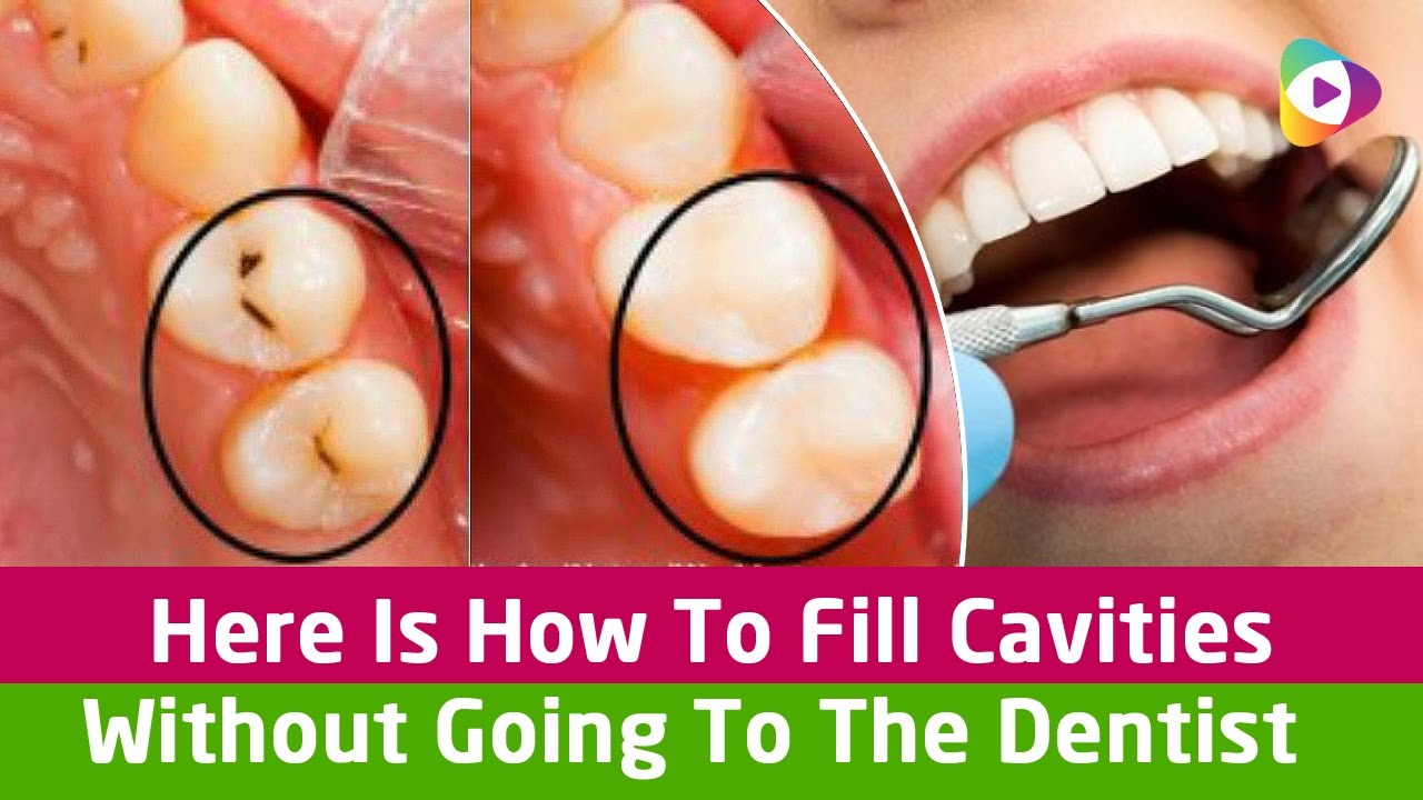 Here is how to fill cavities without going to the dentist health here is how to fill cavities without going to the dentist health tips solutioingenieria Choice Image