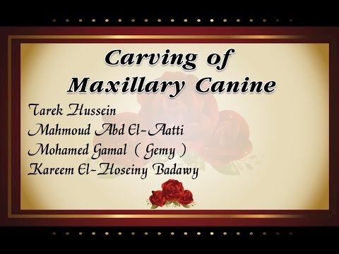 Maxillary Canine Carving [Pro Dentist] [Edited By Karemo]