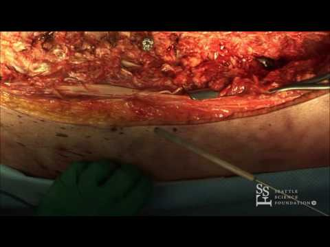 Vertebral Column Resection Demo - Shay Bess, MD