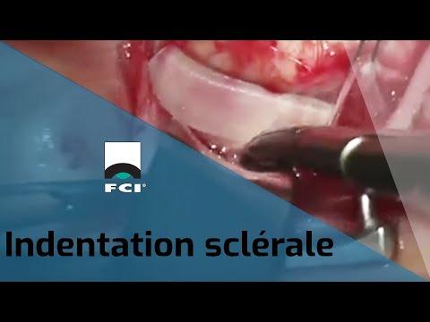 Vignette Vidéo | Technique de l'indentation sclérale