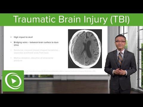 Traumatic Brain Injury (TBI) – Trauma Surgery | Lecturio
