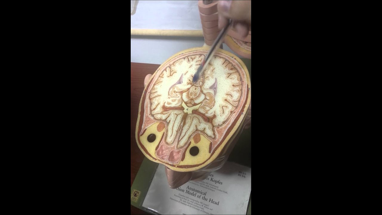 Cross-section of the BRAIN - Anatomy Lab - YouTube