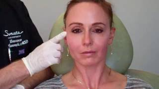 Instant Lift with threads in the mid face with Dr  Janowski