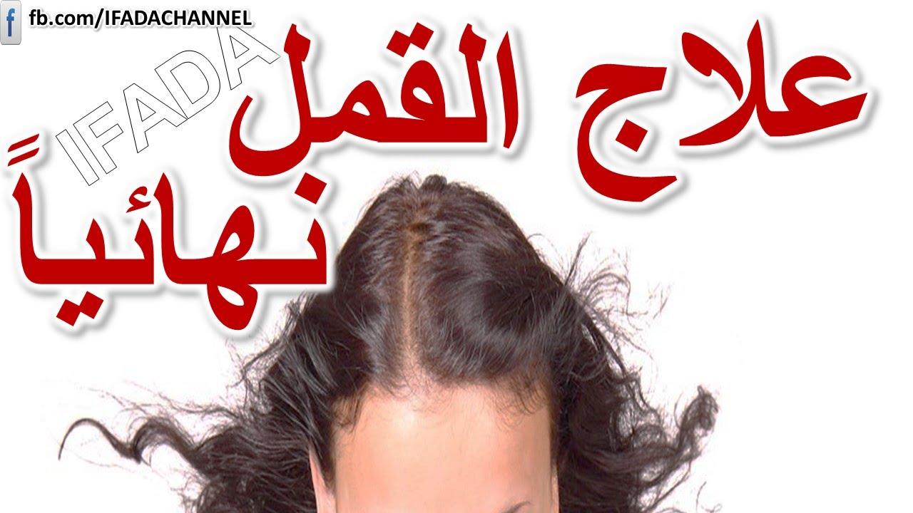 القمل والصيبان طريقة فعالة للقضاء على قمل شعر الراس نهائيا كيف تعالج القمل في الجسم بطريقة سهلة Youtube