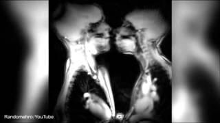 IMPRESIONANTE -Así se ve una relación sexual desde los Rayos X