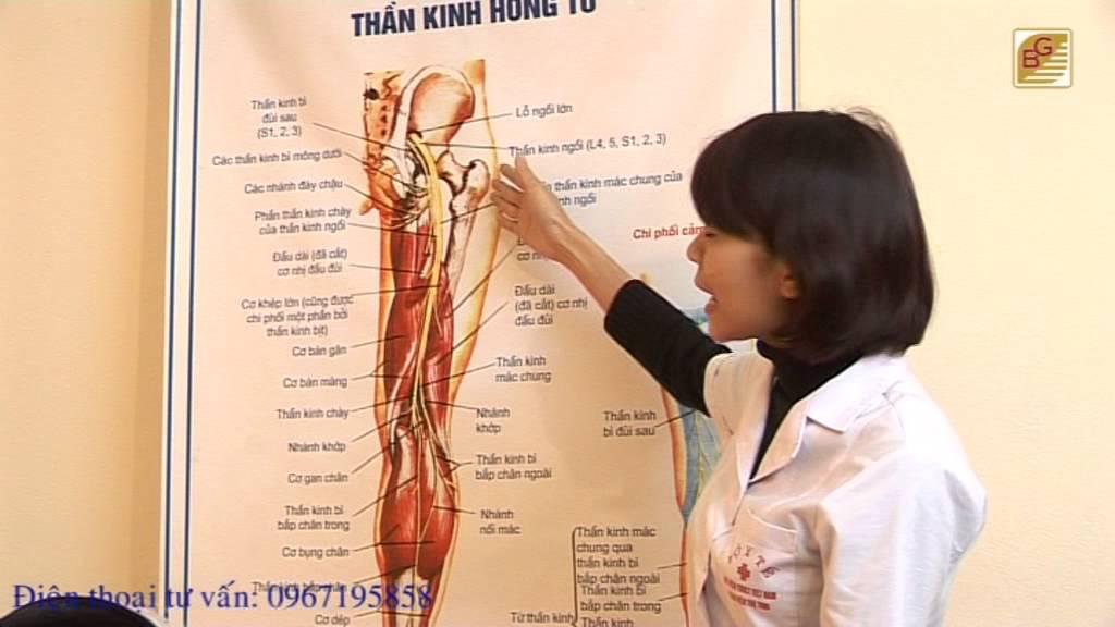 Triệu chứng và cách điều trị bệnh đau dây thần kinh tọa – BS.Nguyễn Thị Ngọc