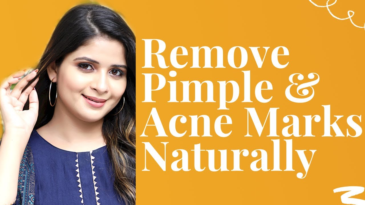 How To Remove Pimples & Acne Marks || Home Remedies || Be That Diva