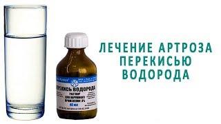 Лечение артроза перекисью водорода по методу Неумывакина