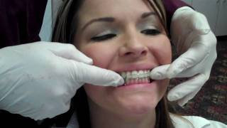 Abari Orthodontics Hawley Retainer Delivery Dr Will