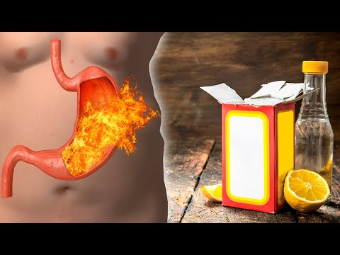 How To Test If You Have Adequate Stomach Acid Levels