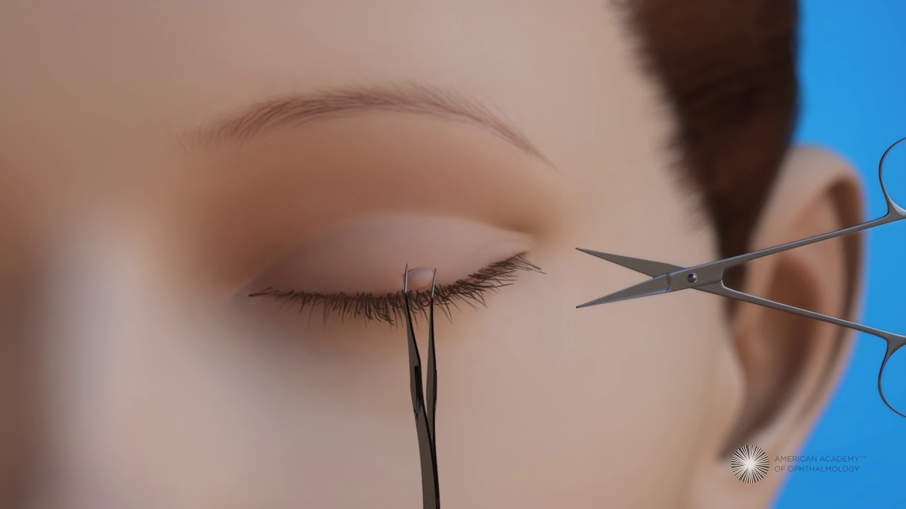 Surgery To Remove Lesions From The Eyelid Youtube