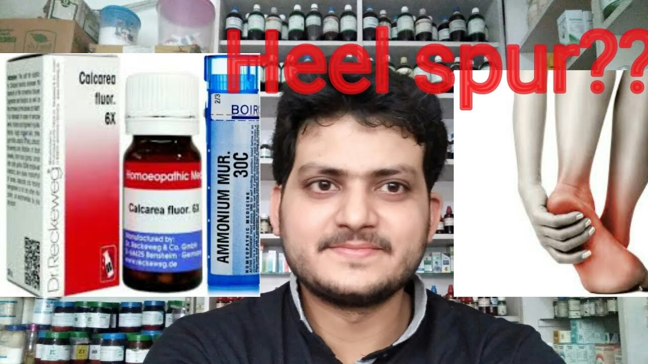 Heel spur ! एडी दर्द! Homeopathic medicine for heel spur? explain?