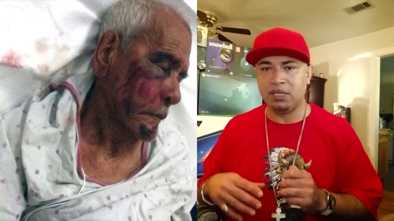 Elderly Man Gets Attacked By Woman & Group Of Guys In California.