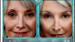 Stem Cell Therapy - BioLogic Anti-Aging Skin Cream