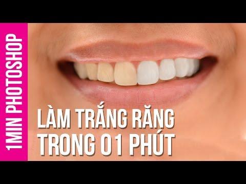 Làm Trắng Răng Trong 1 Phút Photoshop