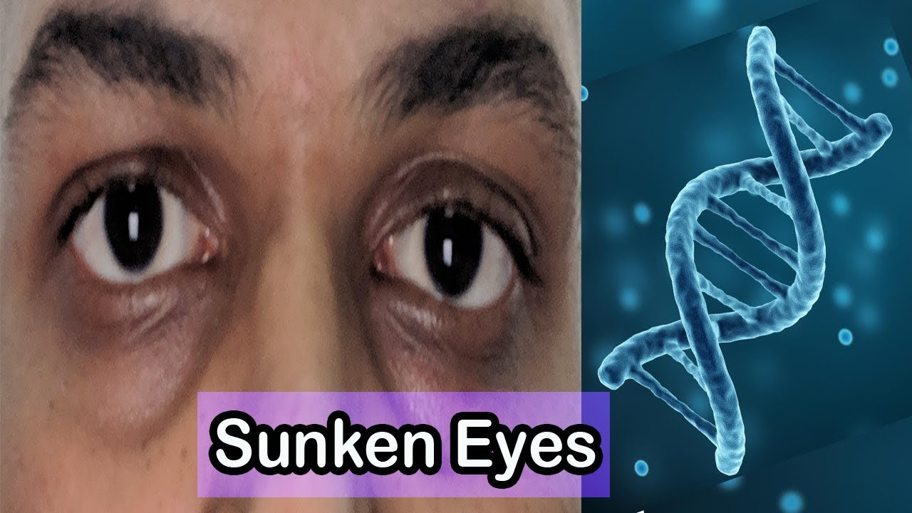 10 Causes of Under Eye Hollowness (Sunken Eyes) in Young ...