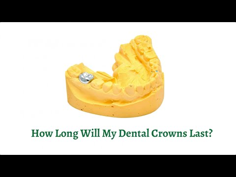 How Long Will My Dental Crowns Last?