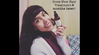 Just Natural Grow New Hair Treatment -- 6 months later!