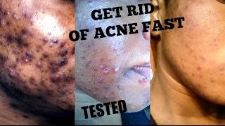 GET RID OF ACNE FAST AT HOME || ACNE HACKS || THIS ACTUALLY WORKS