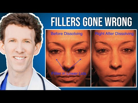Under Eye Fillers Gone Wrong: How To Fix Them