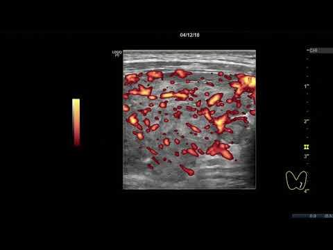 Клинический случай 8. (УЗИ Щитовидной Железы ) доктор А.В. Ушаков