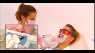 Beyond Whitespa Teeth Whitening - At Cavi Spa NY Thumbnail