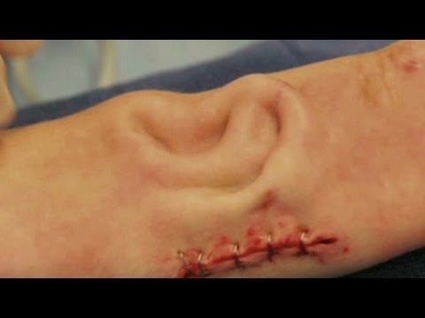 Ear grows on cancer patient's arm for surgery