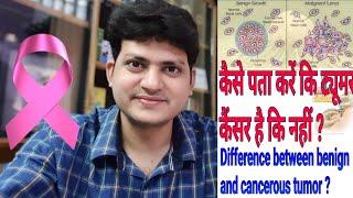कैसे पता करें कि ट्यूमर कैंसर है कि नहीं ? Difference between benign tumor and cancer tumor ?