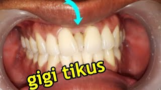 Cara Ampuh Obati Sakit Gigi | Cara Mengatasi Sakit Gigi Berlubang | Obat Alami Untuk Sakit Gigi.
