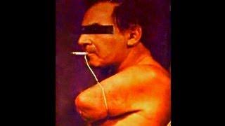 Self Mutilation By Smoking? Buerger