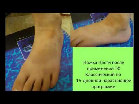 Кольцевидная гранулема у детей: клиника, терапия