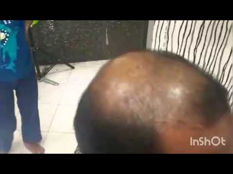 First time in madurai @ Studio 5 international Hair replacement clinic // contact us 8675555570