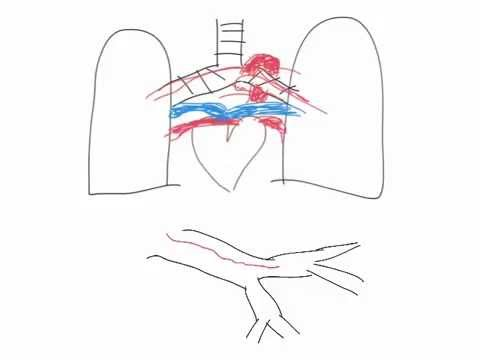 Hemoptysis Coughing Blood Diagnostic Work Up YouTube